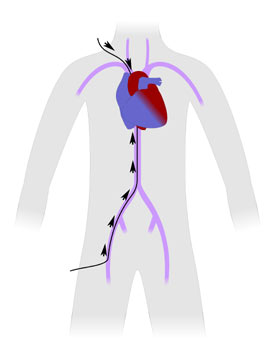Диагностика на вродени сърдечни дефекти