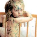 chickenpox go away nasty