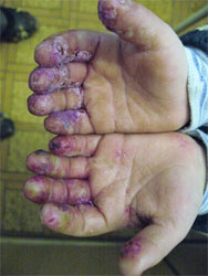 Eczema - inflammation of surface layers of skin