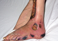 arterial trophic ulcers