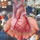 organs for transplantation