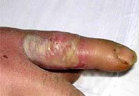 felon kinds of symptoms and treatment