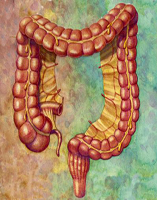 treatment of diverticulosis
